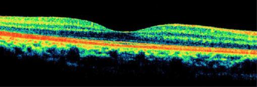 Bild 1: Optischer Schnitt durch eine gesunde Netzhaut (Macula)