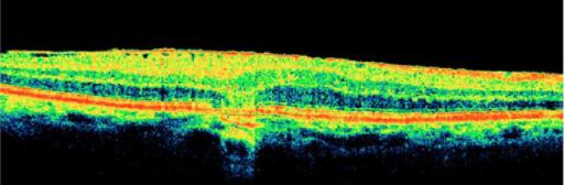 Bild 2: Optischer Schnitt durch erkrankte Netzhaut (Maculaödem)
