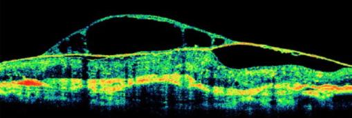Bild 3: Optischer Schnitt durch erkrankte Netzhaut (cystoides Maculaödem)